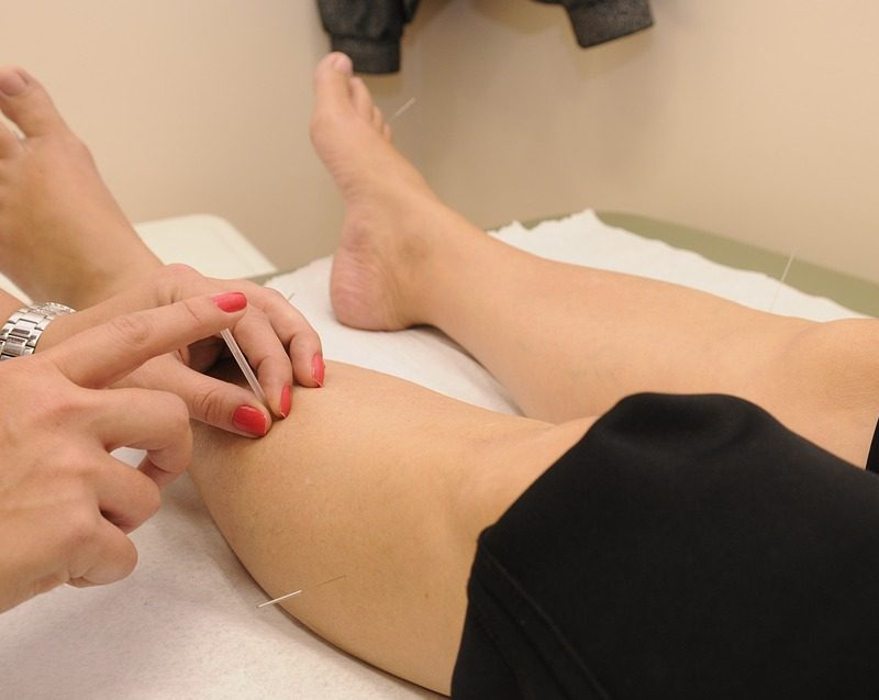 Acupuncture & Traditional Chinese Medicine - CCSP